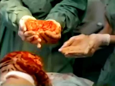 映画「ドクター・ゾンビ」お手軽過ぎる手術シーン